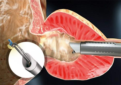 eletrovaporizacao-da-prostata